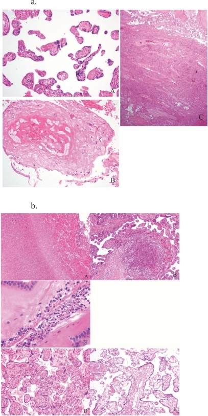 Figure 1a and Figure 1b.Figure 1a. H&E stains of placentas with typical characteristics of hypertension, Botswana. A. Distal villous hyperplasia – small round and elongate villi with large syncytial trophoblastic knots and abundant intervillous space. B. Severe decidual vasculopathy with atherosis. C.Chronic abruption. Figure 1b. H&E stains of placentas with infection and other non-hypertensive findings: A,B, and C are examples of findings that support and infectious cause of death: A. Necrotizing Funisitis – umbilical vein with transmural inflammation and necrotic neutrophil debri as a halo in Wharton's jelly. B. Acute villitis/microscopic abcess. C. Acute chorioamnionitis with multiple bacterial cocci present. D and E are other non-infectious findings: D. Villous maturational arrest (a term placenta with immature villi and centralized vessels) E. Hydrops placentalis – this placenta weighed >900 grams and showed diffuse acute villous edema.