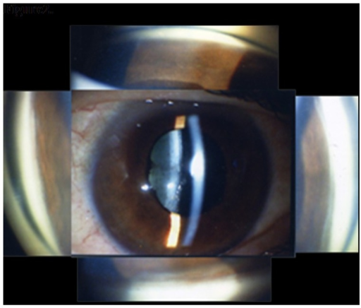 Slit-lamp biomicroscopy and gonioscopy findings at the | Open-i
