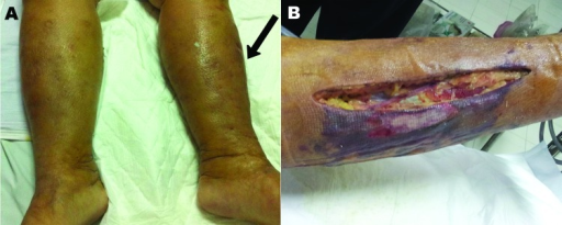 Shewanella haliotis severe soft tissue infection of woman in Thailand, 2012. The patient sought treatment for painful erythematous swelling of the left leg. A) Arrow indicates affected area. B) Postsurgical fasciotomy wound with necrotic tissue.