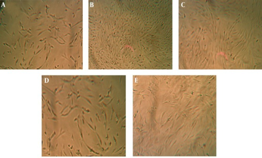 Comparison of Microscopic Aspects of Human Skin Fibroblasts Submitted to Different Concentrations of QSM After 72 Hours of IncubationA) Control group. B) QSM 50 µg/mL treated cells. C) QSM 100 µg/mL treated cells. D) QSM 200 µg/mL treated cells. E) QSM 400 µg/mL treated cells.