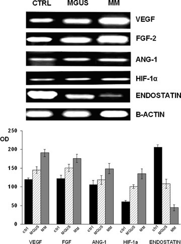 Expression levels of mRNA coding for VEGF, FGF-2, Ang-1, HIF1α and endostatin evaluated by semi-quantitative RT-PCR. Transcript levels from the CAM assay are referred to EC obtained from 6 MM and 6 MMGUS patients and the error band represents the standard deviation of six experiments.