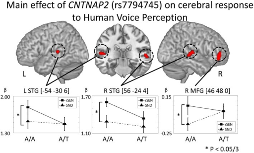 CNTNAP2 (rs7794745) effect on cerebral response to human voice perception. The results of the main effect of rs7794745 in the analysis of full factorial design are shown (voxel level: p < 0.001, cluster level: p < 0.05/3, Monte–Carlo simulation). The error bar shows the distribution of beta values in cerebral activation under rSEN minus baseline (mean: black squares, line) and under SND minus baseline (mean: black triangles, dashed line) at the peak coordinates with the main effect of rs7794745. Asterisks (*) show significant differences with Bonferroni correction in the 3 ROIs (p < 0.05/3). Abbreviations: L, left hemisphere; R, right hemisphere; MFG, middle frontal gyrus; STG, superior temporal gyrus.