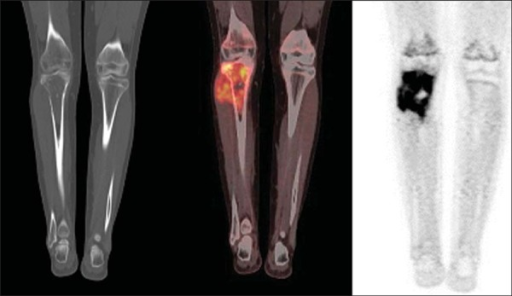 PET/CT image of a 15-year-old female patient diagnosed with Ewing's sarcoma. Oneobserves a permeative, destructive lesion compromising the epiphysis, metaphysisand proximal diaphysis of the right tibia, with extraosseous extension, revealingsharp glycolytic activity (SUV max = 6.6).
