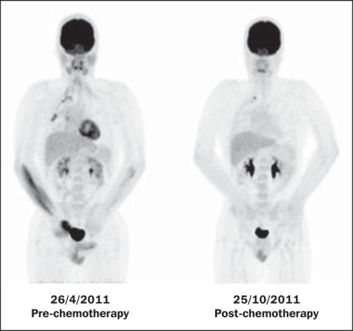 Pre- and post-chemotherapy PET/CT image of a 40-year-old male patient with Askin'stumor. One observes sharp reduction in FDG concentration at the expansile lesionlocated in the pleural plane of the right hemithorax at the postchemotherapyimage, with only a small hypermetabolic area remaining at the apex.