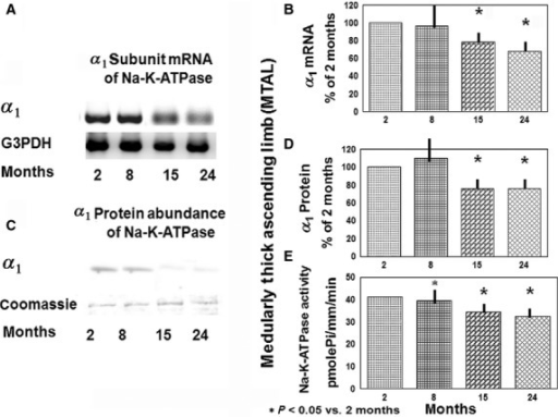 Na-K-ATPase gene expression, protein abundance, and activity in MTAL from 2-, 8-, 15-, and 24-month-old rats. (A) Representative gels for α1 subunit mRNA of Na-K-ATPase and control gene (G3PDH) mRNA on ethidium bromide-stained gels. (B) Densitometry of α1 mRNA of Na-K-ATPase levels in isolated MTAL of 2-, 8-, 15-, and 24-month-old rats (shown in A). Data represent the mean and ± SEM from four independent determinations; *P < 0.05 versus 2-month-old rats. (C) Representative immunoblots show protein abundance of α1 subunit of Na-K-ATPase in the MTAL of 2, 8, 15, and 24-month- old rats. Coomassie Blue staining verified equal amounts (30 μg) of proteins loaded on the gel. (D) Data represent the mean and ±SEM from four independent determinations. (E) Na-K-ATPase activity in the MTAL from 2-, 8-, 15-, and 24-month-old rats. Na-K-ATPase activity in MTAL from 10 pairs of segments for each group at each age; *P < 0.05 versus 2 months.