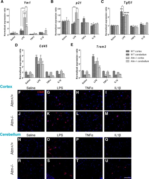 Expression patterns of anti-inflammation associated genes and monocyte infiltration following cytokine stimulation. In wild-type and Atm−/− mouse cortex, LPS administration significantly triggered the expression of Ym1 (A), p21 (B), Tgfβ1 (C), Cd45 (D), and Trem2 (E); with the exception of a modest change in p21 expression in wild-type, the individual cytokines were without effect. TNFα specifically suppressed Cd45 (D) and Trem2 (E) in cerebellum of both genotypes. Similar patterns were observed by CD45 protein expression (F–U). *p < 0.05; **p < 0.01; ***p < 0.001 between cortex and cerebellum in the same treatment group; #p < 0.05; ##p < 0.01; ###p < 0.001 between the values of LPS/cytokine treated and the respective saline-treated cortex or cerebellum groups. Scale bar, 50 µm. n = 3 for each group.