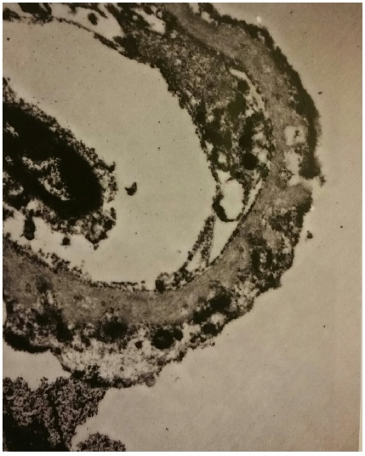 Electron microscopy with global thickening of the glomerular basement membrane.