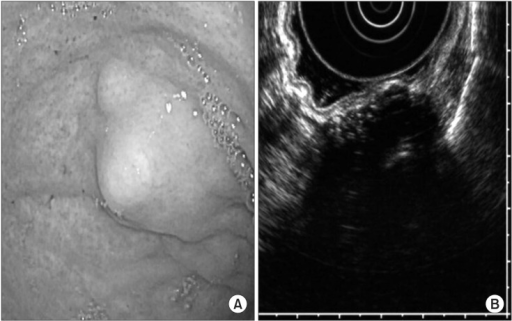 Endoscopic findings of the stomach. (A) Esophagogastroduodenoscopy image demonstrates a 2 cm subepithelial protruding mass located in the fundus of the stomach, covered by normal mucosa. (B) Endoscopic ultrasound revealed an ill-defined heterogenous hypoechoic lesion (3.0×1.5 cm) with multiple hyperechoic spots, arising from the muscularis propria layer.