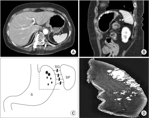 Radiologic findings of the stomach. (A, B) Contrast-enhanced axial and sagittal computed tomography examination demonstrating thick or patchy multifocal calcifications. (C) The schematic drawing of the gastric wedge resection showing the resected stomach (dotted line), calcifications (variable sized dots), stomach (S), spleen (SP), and short gastric vessels (SG). (D) Intraoperative specimen mammography showing diffuse multifocal variable sized calcifications of the gastric fundus and high body along the greater curvature.