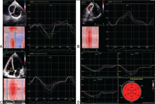 Two-dimensional speckle tracking for strain values at both right and left ventricles. A, Circumferential strain derived from mitral valve level of right ventricle; B, radial strain derived from mitral valve level of right ventricle; C, longitudinal strain derived from apical 4-chamber view of right ventricle; D, longitudinal strain curves derived from apical 4 and 2-chamber view and apical long-axis view of left ventricle.