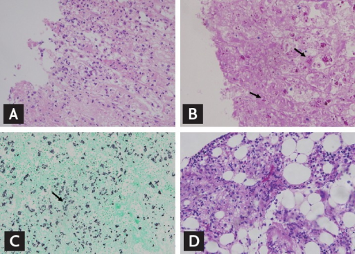 Adrenal gland biopsies (A, H&E, ×400; B, Periodic acid-Schiff [PAS] stain, ×400; C, Giemsa stain, ×400). (D) Bone marrow biopsy (PAS stain, ×400). The small yeast cells are visible by PAS staining (arrows).