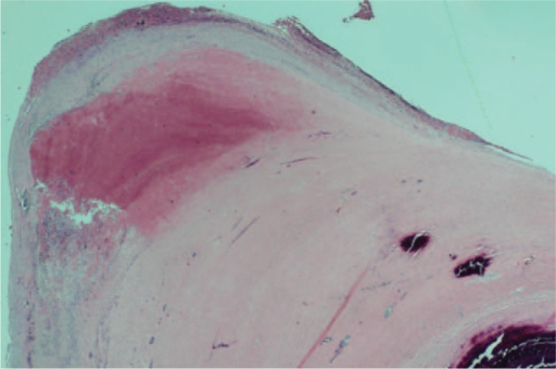 Histological examination of the specimen showed that the vascular lumen is obliterated by an atherosclerotic plaque. The atheroma showed a necrotic area with scattered inflammatory cells and fibrous thickening with calcification. (hematoxylin and eosin stain, ×10).