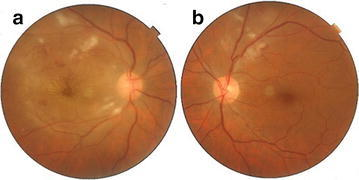 a Fundus photo of right eye with white fluffy lesions suggestive of retinitis in the superior and inferior temporal arcades with macular star. b Fundus photo of left eye with white fluffy retinitis lesions in the superior temporal arcade