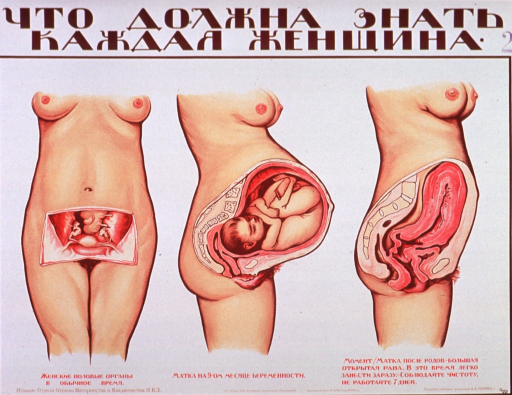 <p>Predominantly white poster with brown and red lettering.  All lettering in Cyrillic script.  Title at top of poster may mean what every woman must know.  Visual images are cutaway illustrations of a woman that reveal the uterus before, during, and after pregnancy.  Publisher information at bottom of poster.</p>