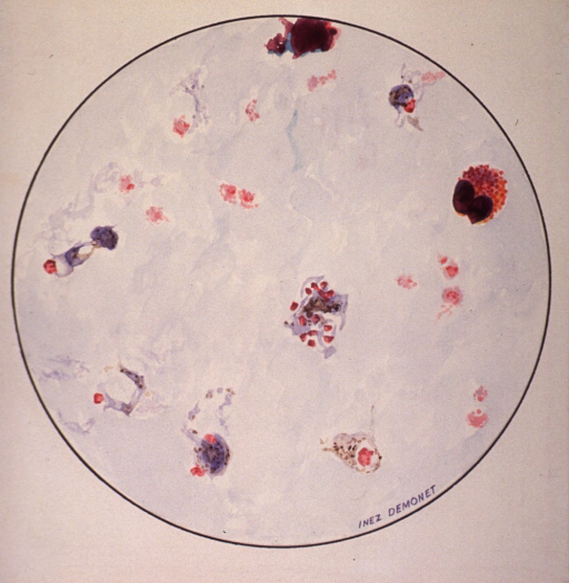 <p>Microscopic view of a malarial parasite.</p>