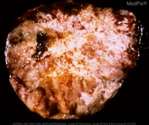 This gross specimen weighed 215 grams and measured 9.6 cm in greatest diameter.  There is extensive necrosis and calcification present