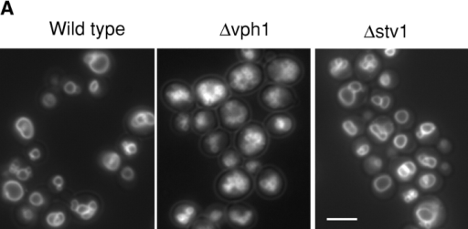 Vacuolar structure in V-ATPase mutants. (A) Yeast cells (BY4742) containing the indicated deletions of different V-ATPase subunits were grown logarithmically in liquid YPD medium, stained with FM4–64, and analyzed by fluorescence microscopy as described in Materials and methods. (B) Quantitation of vacuole morphology. The number of vacuolar vesicles (stained by FM4–64) per cell was determined for the strains shown in A. For each experiment, 200 cells per strain were analyzed and grouped into the indicated categories. Two experiments were averaged. Bar, 5 μm.