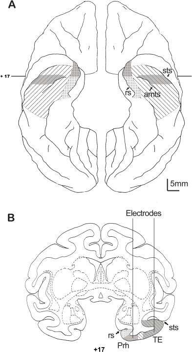 Schematic localization of recording sites.(A) Ventral view of the brain with perirhinal cortex (medial, dots) and area TE (hatched) highlighted. Actual recording was done in parts of area TE and perirhinal cortex that are indicated in gray. (B) Coronal cross-section of a standard rhesus monkey atlas (Laboratory of Neuropsychology, NIMH; http://ln.nimh.nih.gov/) at 17 mm rostral to the interaural line (AP +17) showing a recording track into perirhinal cortex and a track into area TE. The noise correlation was found to occur for most area TE neurons that were recorded lateral to the anterior middle temporal sulcus. The noise correlation was not found in the responses of neurons recorded in perirhinal cortex in this or pervious studies recorded medial to anterior middle temporal sulcus [19],[45]. MRs with electrodes can be seen in Liu and Richmond [13]. amts, anterior middle temporal sulcus; rs, rhinal sulcus; sts, superior temporal sulcus; TE, area TE; Prh, perirhinal cortex.
