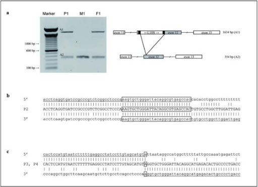 Localisation of the Insertion and Deletion Breakpoints. (a) Long range PCR products for patient P1, his mother M1, and his father F1 separated on a 0.8% agarose gel. Marker: 100 bp DNA Ladder. Amplicon A2 represents the wildtype fragment and A1 the PCR product with the L1HS insertion. Schematic drawing shows the L1HS insertion in exon 12. Exons are indicated as boxes, introns as interrupted lines. The L1HS insertion is flanked by a 15 bp target site duplication (black boxes). (b) Sequence of the breakpoint junction in patient P2 compared to control sequence. Homologous regions are boxed. (c) Sequence alignment of the breakpoint junction in patients P3 and P4 and the control 5' and 3' regions.