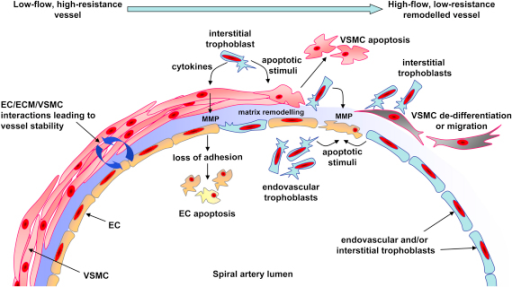 Diagram of possible mechanisms involved in trophoblast-dependent spiral artery remodelling. Prior to remodelling low-flow, high-resistance spiral arteries are maintained in a stable state by interactions and signalling between endothelial cells (EC), the extracellular matrix (ECM) and vascular smooth muscle cells (VSMC). The decidualisation process causes EC vacuolation and VSMC swelling (not shown); however, the major changes to vessel structure occur after extravillous trophoblast reach the vessel. Trophoblasts invading interstitially would interact with VSMC first while endovascular trophoblasts would initially encounter EC in the vessel lumen. Trophoblasts can produce pro-apoptotic factors which can induce vascular cell apoptosis. Apoptotic cells may then be rapidly removed by professional phagocytes such as macrophages or other cells, such as trophoblasts, which also possess phagocytic activity. Proteolytic enzymes produced by trophoblasts and vascular cells can influence the composition of the ECM proteins important in maintaining vessel integrity. In particular matrix metalloproteinases (MMP) can be produced by trophoblasts and their production by VSMC can be regulated by trophoblasts. Loss of adhesive interactions between vascular cells and the remodelled ECM could then lead to vascular cell apoptosis. Changes in the ECM or signals from trophoblasts may influence the state of differentiation of VSMC by promoting a switch from a contractile to a more synthetic, proliferative phenotype, which may also be accompanied by increased migratory activity and sensitivity to pro-apoptotic factors. Haemodynamic factors and the presence of decidual natural killer cells will also play a role in the regulation of remodelling (not shown). The high-flow, low-resistance remodelled vessel will consist of trophoblasts embedded in a fibrinoid material as a replacement for the VSMC. The endothelium is temporarily replaced with a trophoblast layer, although it is restored later in pregnancy.