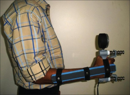 All measurements were taken in standardized position – standing with the arm held flush to the side of body, elbow flexed to 90 degrees, forearm in mid-prone position and wrist in the position determined by the splint
