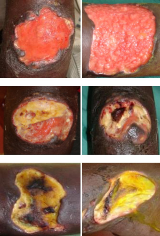 Pictures used in the Buruli ulcer (BU) wound care study. Top row: red wounds. Middle row: yellow wounds. Bottom row: black wounds.