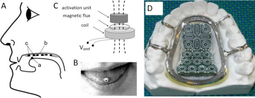 Inductive tongue control system (modified from [[12]] with permission, © 2006 IEEE): (A) Placement of sensors (c), dental brace (b) and activation unit (a), (B) Activation unit attached to the tongue as the upper ball of a piercing, (C) Principle of activation for inductive sensors; perturbation of the magnetic field of the sensor by the activation unit induces an activation signal back into the sensor, and (D) The upper jaw dental brace placed on a plaster model.