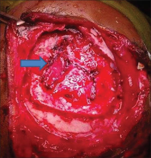 Intraoperative photograph after repair of sinus tear by continuous suturing and reinforced with muscle patch