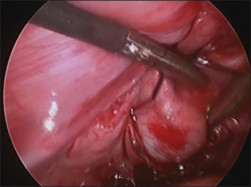 Laparoscopic posterior urethral diverticulectomy showing the hitching suture that's facilitate diverticular dissection