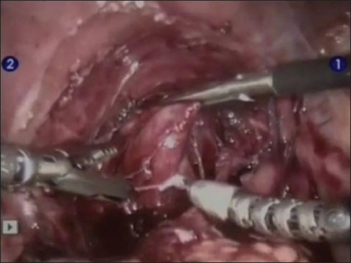Robotic assisted laparoscopic posterior urethral diverticulectomy