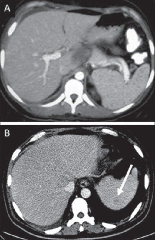 A: Miliary splenic tuberculosis. Contrast-enhanced CT showing minutehypoattenuating, nodules randomly distributed in the spleen. B:Macronodular splenic tuberculosis. Contrast-enhanced CT reveals a single,peripheral nodule in the spleen.