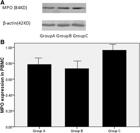 The MPO expression of PBMCs in the three groups. a Detection of MPO expression in cultured PBMCs from patients with ACS by Western blot analysis; b Effect of FPG on MPO expression of PBMCs, MPO expression is expressed as absorbance ratio of MPO product to β-actin product