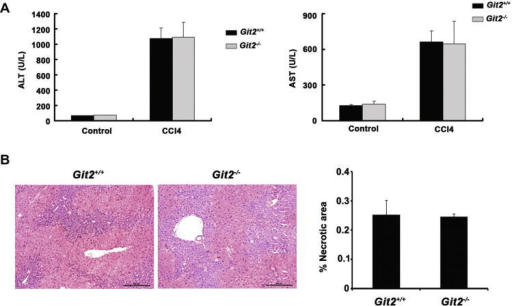 The effect of GIT2 depletion on CCl4 induced liver injury. (A) Serum ALT and AST levels from Git2+/+ and Git2−/− mice (n = 3) were determined at 12 h following injection of CCl4 at the dosage of 1 ml/kg (1:3 diluted in corn oil) intraperitoneally (i.p.). (B) 12 h after 1 ml/kg (1:3 diluted in corn oil) CCl4 injection, mice were sacrificed and the liver tissues were fixed, sectioned and stained with H&E for histopathological and morphological analysis. Scare bar, 200 μm. The percentage of necrotic area was quantitated using ImageJ software and values are the mean ± SD of five fields of measurements.