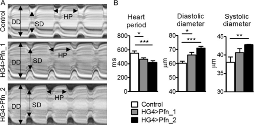 Cardiomyocyte-specific overexpression of profilin in Drosophila induces cardiomyopathy. (A) Representative M-mode kymograms generated from high-speed videos of beating control, Pfn_1, and Pfn_2 heart tubes. DD, diastolic diameter; SD, systolic diameter; HP, heart period. (B) Semi-automated optical heartbeat analysis from flies overexpressing profilin via the HG4 cardiac-specific driver revealed significant reductions in heart period and increased cardiac dimensions relative to control (n = 28–30, *P < 0.05, **P < 0.01 and ***P < 0.001; Kruskal–Wallis test with Dunn's post hoc test for HP and SD analysis; one-way ANOVA with the Bonferroni post hoc test for DD analysis).