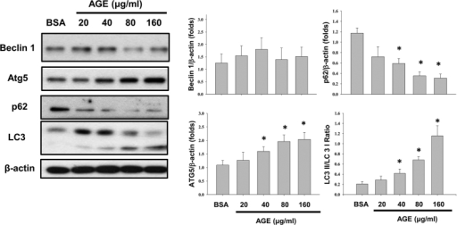 Effects of AGEs on autophagy-related protein expressions.Cells were treated with AGEs (20–160 μg/ml) for 24 h. BSA (160 μg/ml) was used as a negative control. The cleavage of LC3 and the protein expressions of Atg 5, beclin 1, and p62 were determined by Western blot. Data are presented as mean ± SEM of three independent experiments performed in duplicates. *P < 0.05 as compared to BSA-treated group.