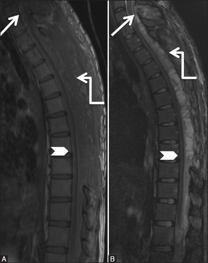 Infective: Tuberculosis: Follow-up scan after thoracic laminectomy and on anti-tuberculous treatment. Magnetic resonance imaging scan 2 months later shows increase in the posterior epidural soft tissue with necrosis (elbow arrow). Persistent compression on spinal cord (arrowhead) is seen. Note the persistent abnormal signal C7 spinous process (arrow)
