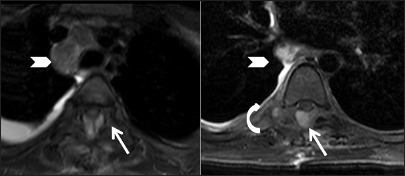 Infective: Tuberculosis: Follow-up scan after thoracic laminectomy and on anti-tuberculous treatment: Axial T2 fat-saturated images showing posterior epidural abscess (arrow) compressing the cord. Persistent abnormal signal is seen in right costotransverse joint associated with much lesser amount of soft tissue (curved arrow). Also note the decrease in the size of mediastinal nodes (arrowhead)