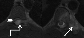 Infective: Tuberculosis: Axial T2-weighted images of thoracic spine at T7-8 level showing posterior epidural abscess (elbow arrow) compressing the cord anteriorly (arrowhead) with edema in cord. Note the involvement of left costotransverse and costovertebral joint (arrow)