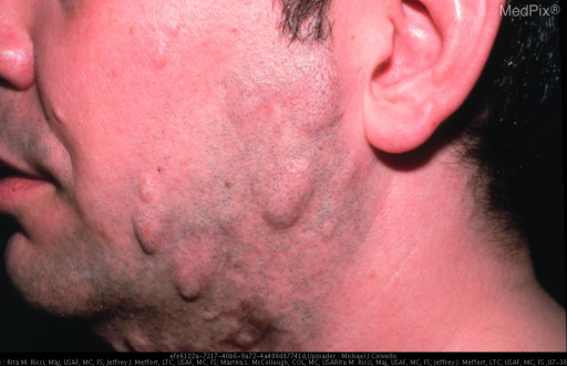 PRIMARY ANETODERMA