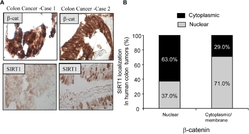 SIRT1 expression occurs in a subset of human colon cancers and inversely correlates with the nuclear localization of β-catenin.(A) Representative images illustrating SIRT1 and β-catenin subcellular expression in human colon tumors. For each colon cancer case shown a text box insert indicates the detected protein (Image magnification 200×). (B) Correlation of SIRT1 and β-catenin expression in human colon tumors. The bar graph depicts cumulative immunostaining data from a tissue microarray of 81 colon cancer cases. Nuclear expression was scored as either no expression, weak expression, or moderate/strong expression. Positivity in nucleus was defined as moderate/strong expression. All slides were interpreted by two board certified pathologist blinded from any other clinical and laboratory data.