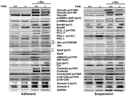FAK and adhesion modulate v-Src-induced phosphorylation of various Src substrates. (A) Lysates from adherent cultures of FAK+/+[puro], FAK-/-[puro], FAK+/+[v-Src] and FAK-/-[v-Src] cells were probed either directly by IB for specific phosphorylated form(s) of the Src substrate proteins, total substrate protein levels or GAPDH, or probed for total phosphorylated protein by immunoprecipitating with substrate-specific Ab followed by IB for phosphotyrosine using MAb4G10. (B) Same IB or IP/IB analysis as in panel A using lysates of suspension cultures. Each of these blots is typical of at least duplicate independent experiments.