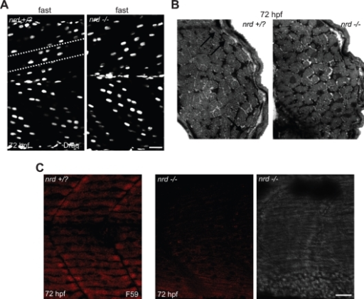 Muscle morphology in nrd+/? and nrd−/− larval zebrafish. (A) Confocal images from 72-hpf nrd+/? and nrd−/− larvae labeled with the vital dye Draq 5 to reveal nuclei of fast muscle. Nuclei of fast muscle have a characteristic signature as they are 'tilted' at 45° (white dashed lines). (B) Cross-sections through muscle of 72-hpf nrd+/? (left) and 72-hpf nrd−/− larval zebrafish (right). Arrows in the nrd+/? larva point to slow muscle fibers at the lateral aspect of the musculature. These slow fibers were not observed in nrd−/− larval zebrafish. (C) Photomicrographs of 72-hpf nrd+/? (left) and 72-hpf nrd−/− larvae (middle) labeled with the antibody F59 to detect slow muscle fibers. The nrd−/− larva lacks F59, slow muscle fiber labeling. Right, differential interference contrast image of the 72-hpf nrd−/− larva. Scale bars, 20 μm.
