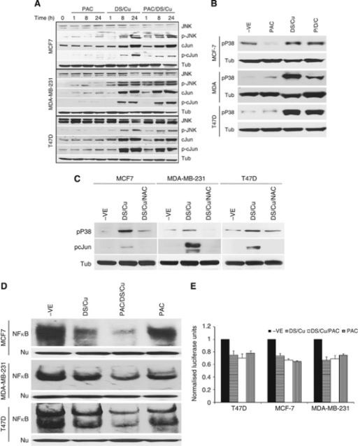 The effect of DS/Cu on MAPK and NFκB pathways. The overnight cultured BC cells were exposed to PAC1 μ, DS1 μ/Cu1 μ or PAC1 μ/DS1 μ/Cu1 μ for indicated time lengths. The expression levels and phosphorylation status of proteins in JNK (A) and p38 (B) pathways were detected by western blot. (C) The activation of JNK and p38 pathways was reversed by NAC. The phosphorylation of cJun and p38 in BC cell lines was determined by western blot after exposure to DS/Cu or DS/Cu plus NAC (10 m) for 24 h. (D) NFκB DNA-binding activity was analysed by electrophoretic mobility-shift assay assay. Nu: western blot of nucleolin was used as a protein loading control. The BC cell lines were treated with PAC1 μ, DS1 μ/Cu1 μ or PAC/DS/Cu for 24 h. (E) NFκB transcriptional activity examined by luciferase reporter gene assay after exposure to PAC1 μ, DS1 μ/Cu1 μ or PAC/DS/Cu for 24 h.