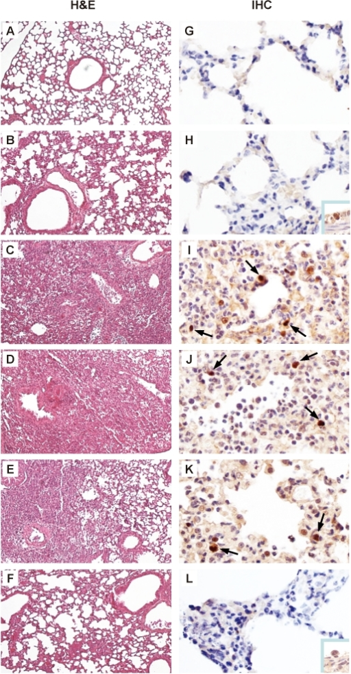 Histopathology and immunohistochemistry in lung tissues of mice infected with rEG/D1 viruses.Photomicrographs of hematoxylin-and-eosin (H&E) stained and immunohistochemically (IHC) stained lung sections from mice infected with 3×104 FFU rEG/D1 viruses 7 d post-infection are shown as follows. (A) and (G) mock-infected. (B) and (H) rEG/D1-infected. (C) and (I) rEG/D1Q192H-infected. (D) and (J) rEG/D1129Δ,I151T-infected. (E) and (K) rEG/D1-EG/12 HA-infected. (F) and (L) rEG/D1-EG/12 HAH192Q-infected. In the IHC-stained tissues, viral antigen is stained deep brown on a hematoxylin-stained background (arrows). In mice infected with rEG/D1 and rEG/D1-EG/12 HAH192Q, positive staining was detected sporadically in the bronchiolar epithelium (insert).