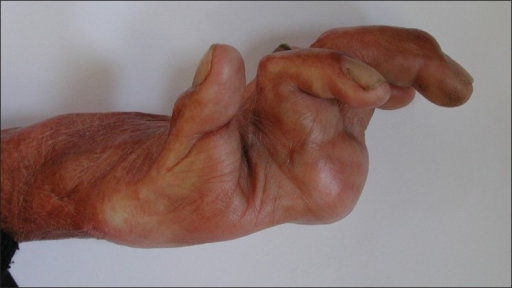 Severe dorsal contracture. This patient sustained a deep burn to the dorsum of the hand as a young adult. Healing by secondary intention has resulted in hyperextension at the MCPJs, with compensatory flexion at the PIPJs