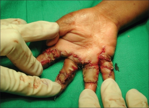 Case 1 post-op. the index and little fingers have been treated with z plasty supplemented with full-thickness skin grafts. The middle and ring fingers have had H-shaped incisions and fall back flaps, with a flag flap to the middle and a full thickness to the ring for the residual defects