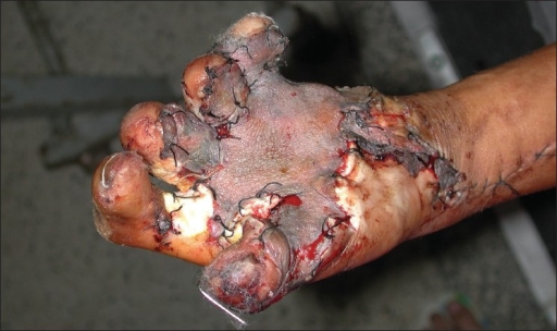 Case 4 post-op. this case was reconstructed with a radial forearm fascial flap and split-skin graft