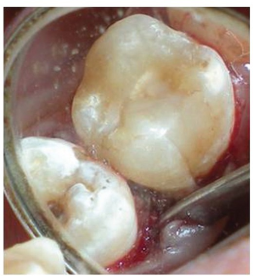 Occlusal view of fractured distofacial fragment positioned at its original site with respect to 16. Build up of lost mesiopalatal fragment is done with microhybrid resins.