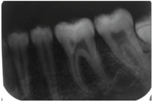 Intraoral periapical radiograph with 36 at 2-year followup. No significant pulpal or periapical changes.