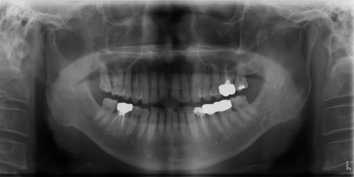 Figure 1:Multilocular developmental salivary gland defect ...